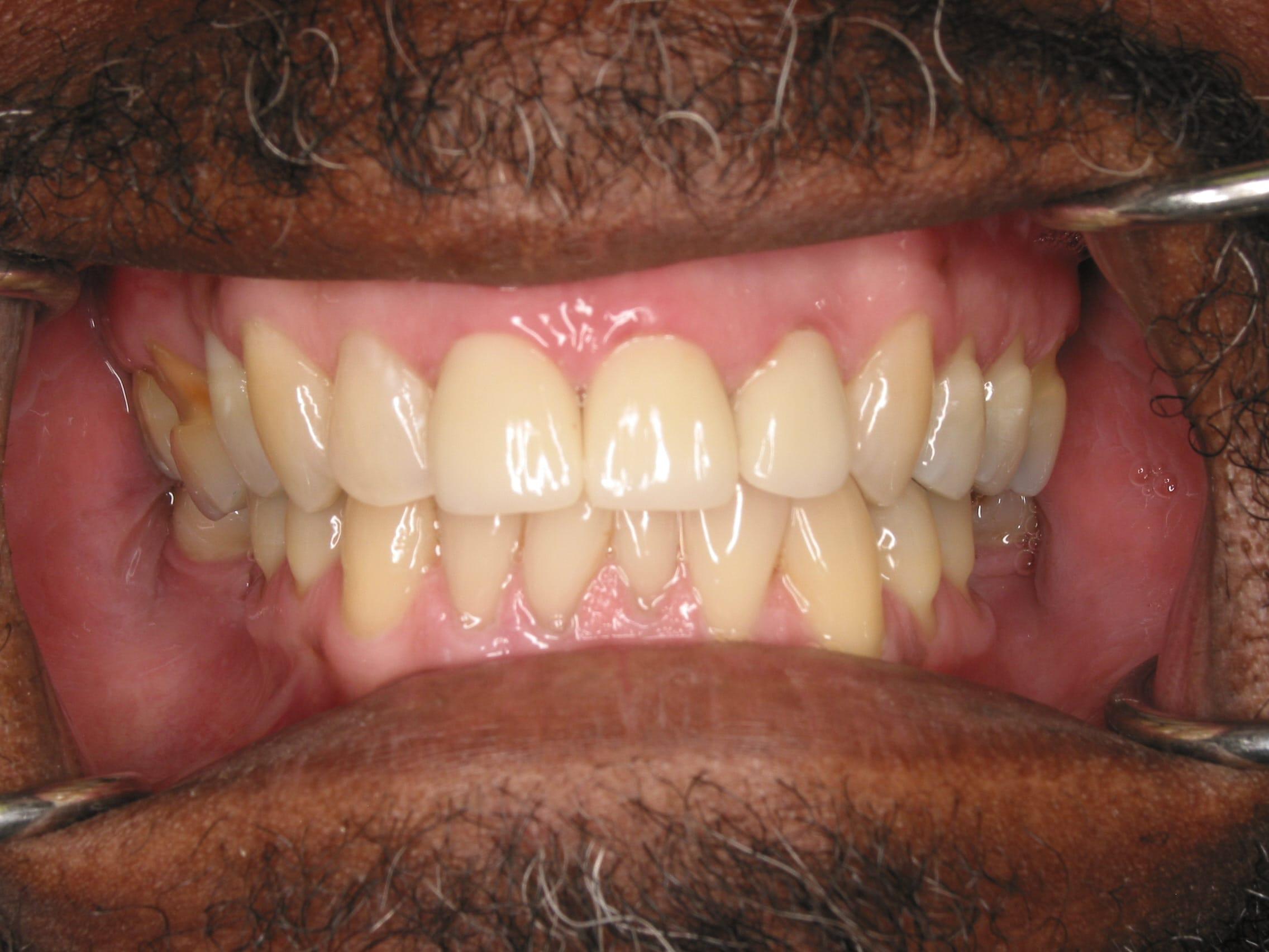General Dentistry Sunrise