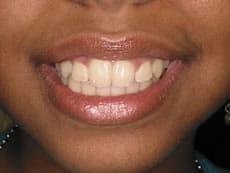 Invisalign Dentist Sunrise