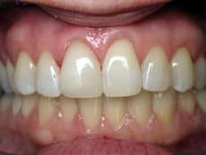 Dentist Sunrise