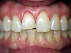 Affordable Dentist Sunrise