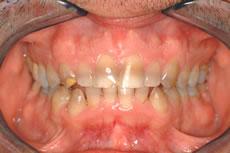 Family Dentist Sunrise